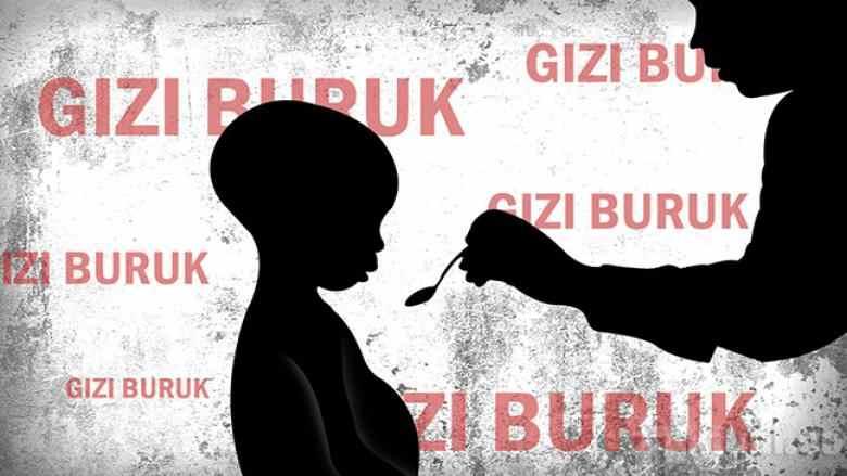 Dua Tahun Enam Anak di Kotamobagu Terserang Gizi Buruk Berita Kotamobagu